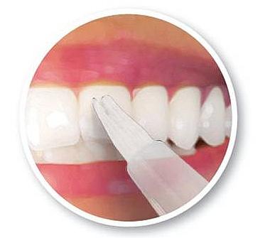Wybielanie zębów - zębów - U dorosłych, którzy zbyt długo odkładali odwiedziny u stomatologa, czasami nie można uratować wszystkich zębów. Straty są zbyt wielkie i należy zęba usunąć. Ale z pozostałymi sprawami kompetentny [TAG=stomatolog